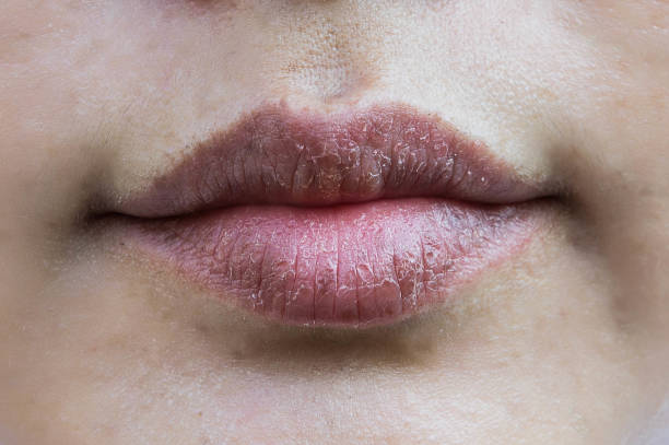 lips hypersensitive to dry lips, lips allergic to chemicals , black lips - dry stock photos and pictures