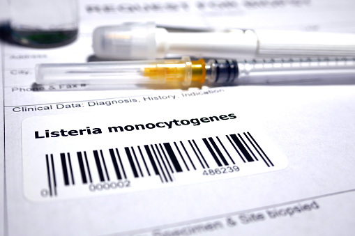 Request for biopsy - Listeria monocytogenes