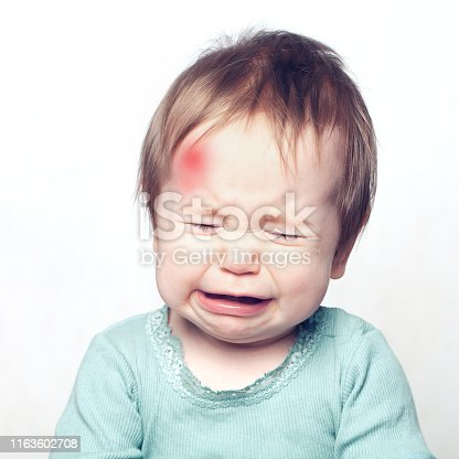 Little baby with bruise crying. Medical concept