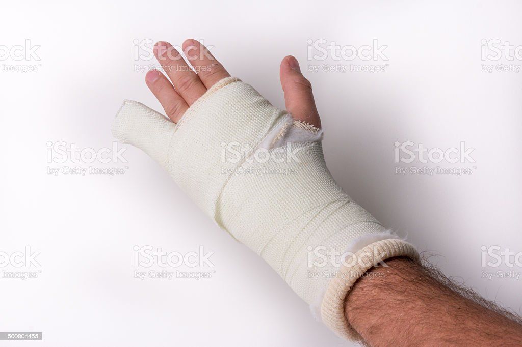 Little finger in orthopedic cast stock photo