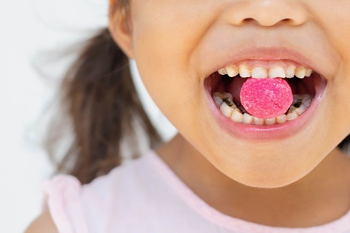 A little kid eating too much candy with teeth decay and yellow plack from bad oral care.