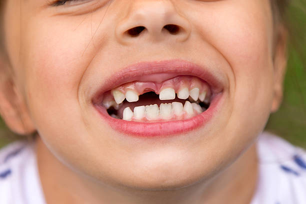 little girl fell a baby tooth - zahnlücke stock-fotos und bilder