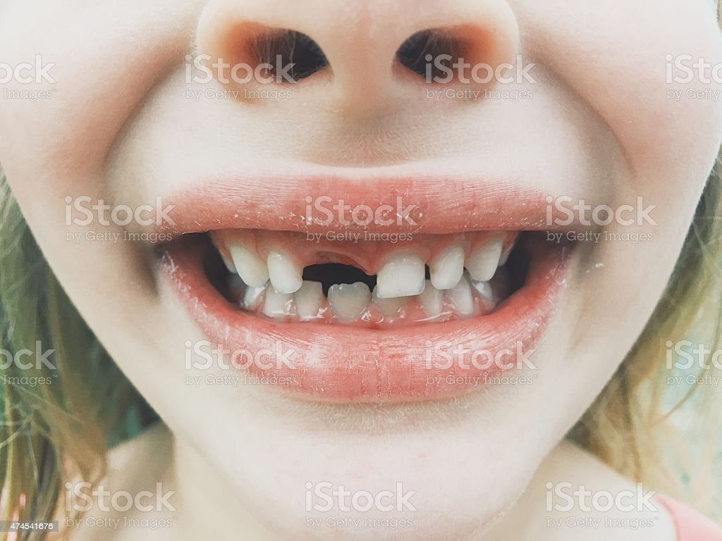 Little Girl Missing Tooth stock photo