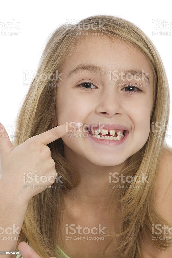 little girl pointing at her teeth royalty-free stock photo
