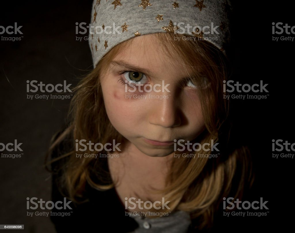 Little Girl with a Bruised Eye stock photo