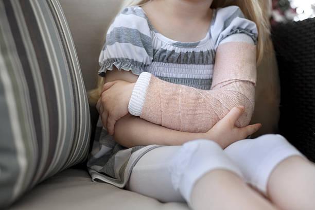 Little girl with broken arm stock photo