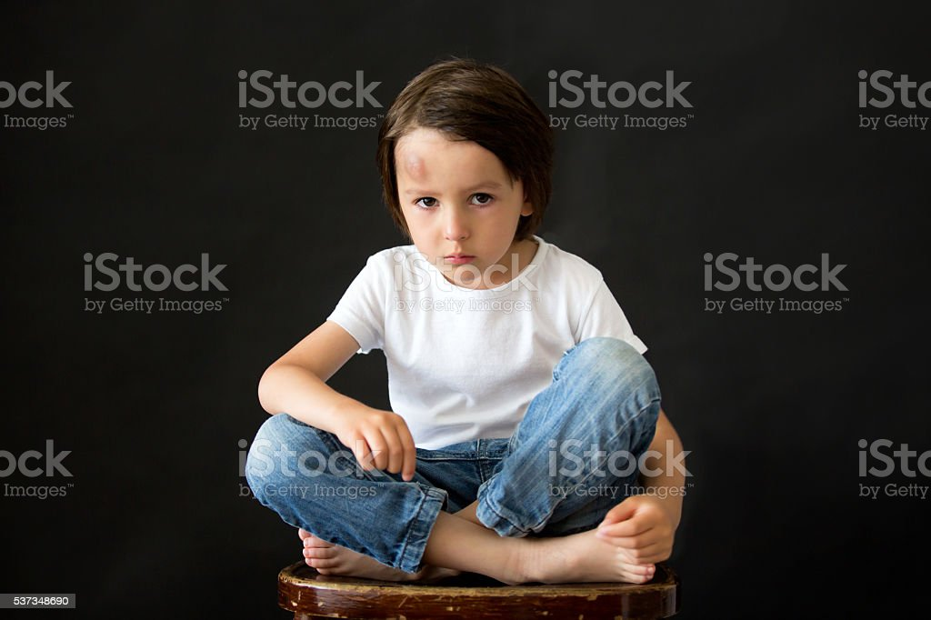 Little sad boy with big bump on head from fall royalty-free stock photo