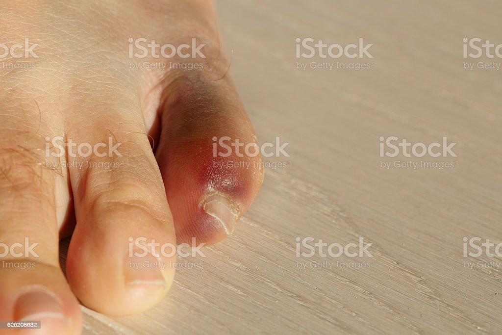 Little toe with severe inflammation and bruising stock photo