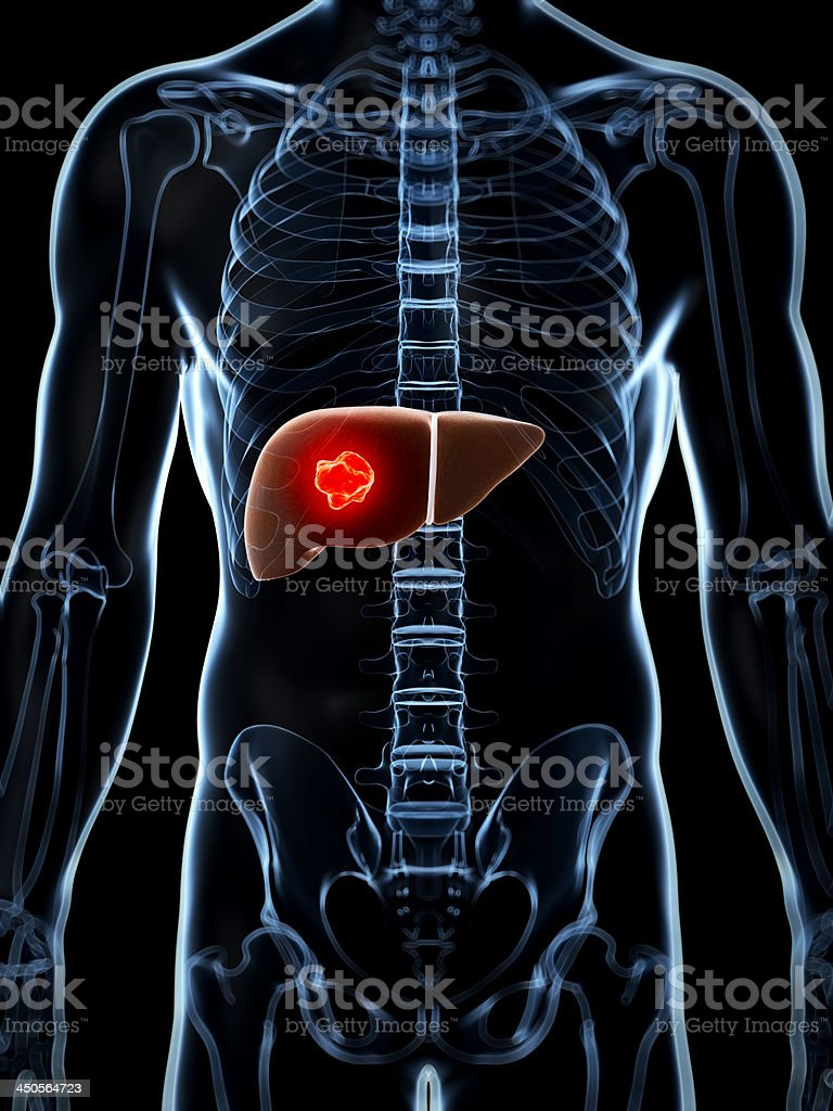 liver cancer royalty-free stock photo