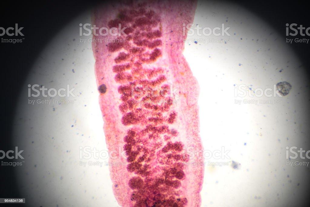Encantador Hígado Fluke Anatomía Cresta - Imágenes de Anatomía ...