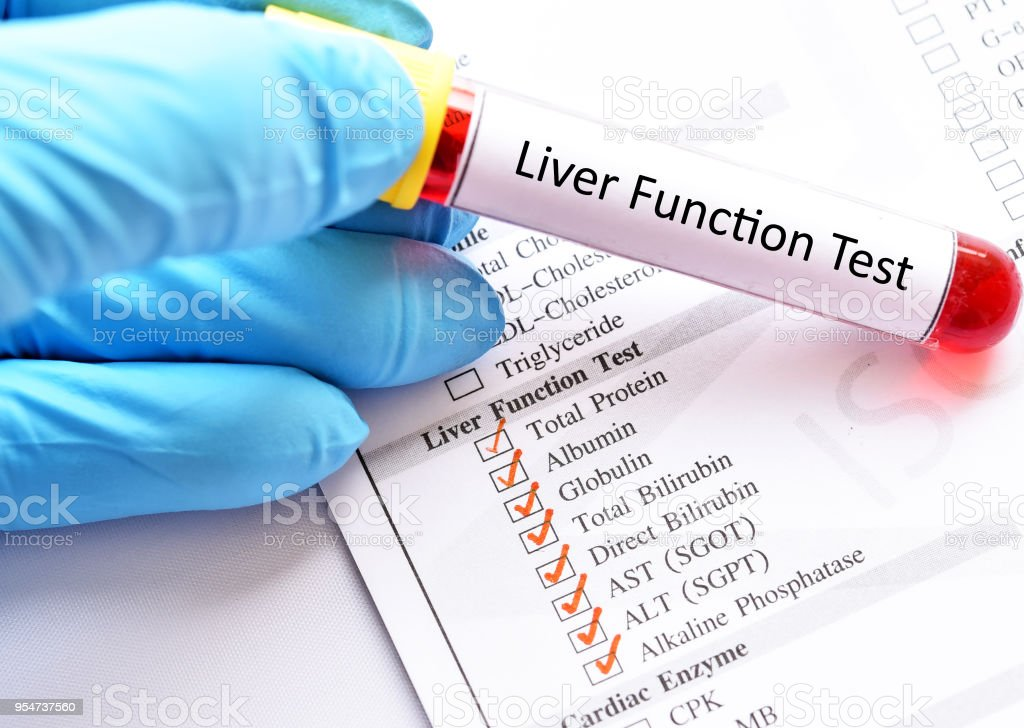 Liver Function Test Stock Photo More Pictures Of Analyzing Istock
