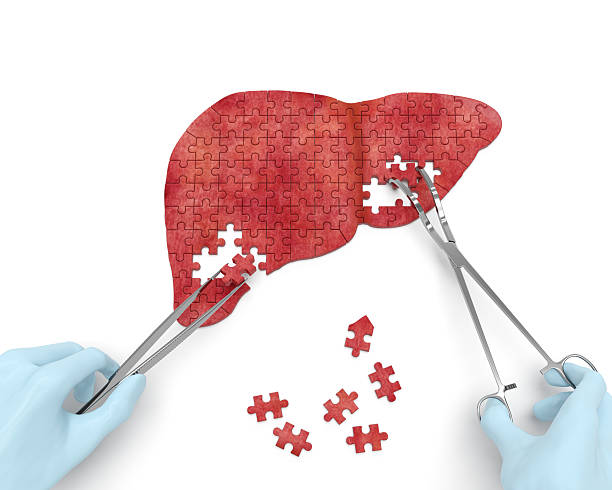 Liver operation stock photo