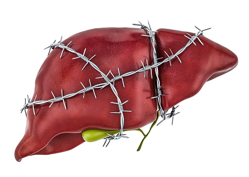 istock Liver Pain concept. Human liver with barbed wire. 3D rendering isolated on white background 1070715846