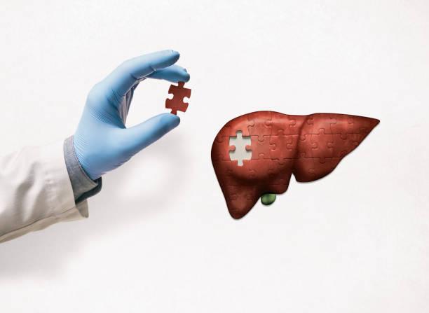 Liver treatment concept. stock photo