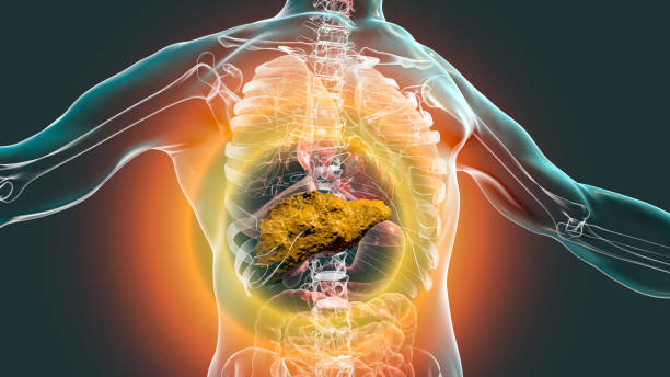Liver with cirrhosis inside human body stock photo