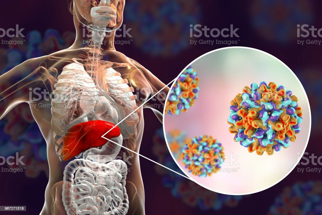 Liver with Hepatitis B infection and close-up view of Hepatitis B Viruses stock photo