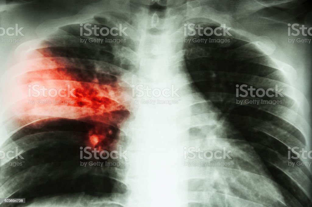 Lobar pneumonia . stock photo