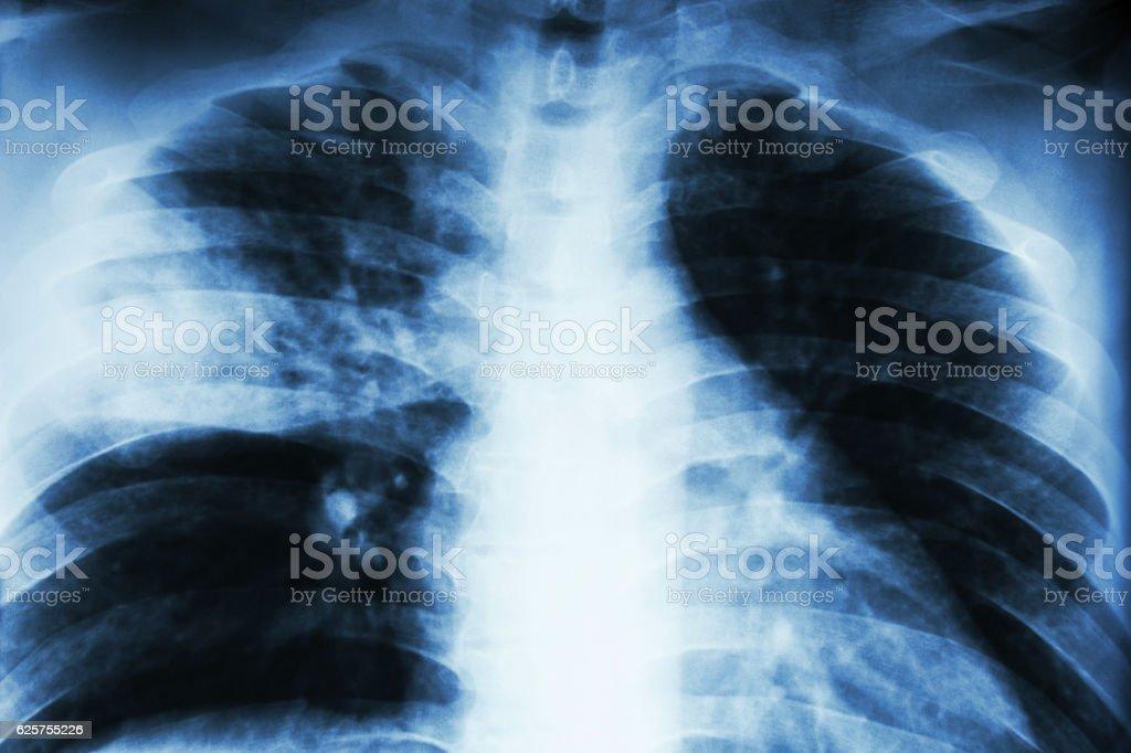 Lobare polmonite - Foto stock royalty-free di Accudire