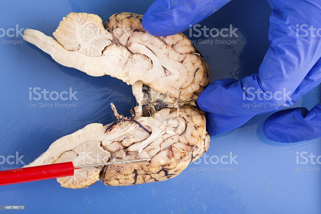 Longitudinal Crosssection Of A Cow Brain Stock Photo More Pictures