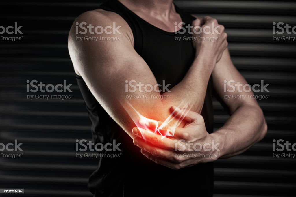 Looks like he's done some serious damage to his elbow stock photo