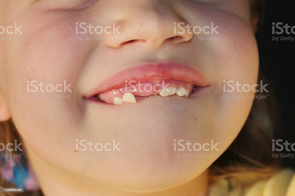 Loose Tooth stock photo