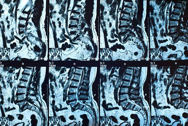 Low back MRI scan stock photo