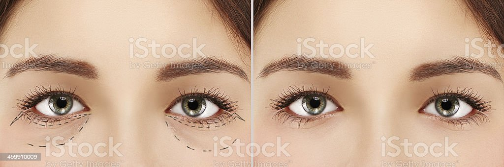 Lower blepharoplasty .Eyelid surgery stock photo