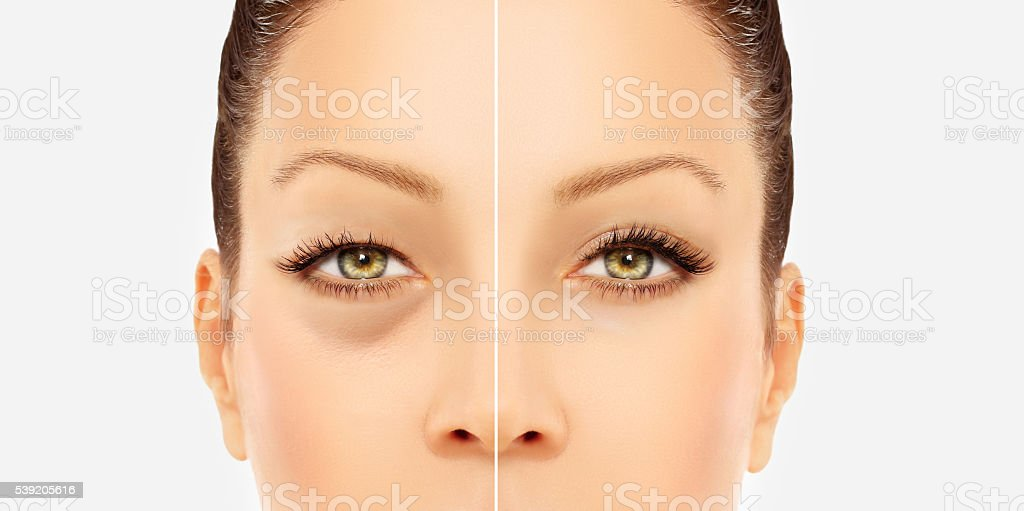 Lower Blepharoplasty.Upper blepharoplasty stock photo