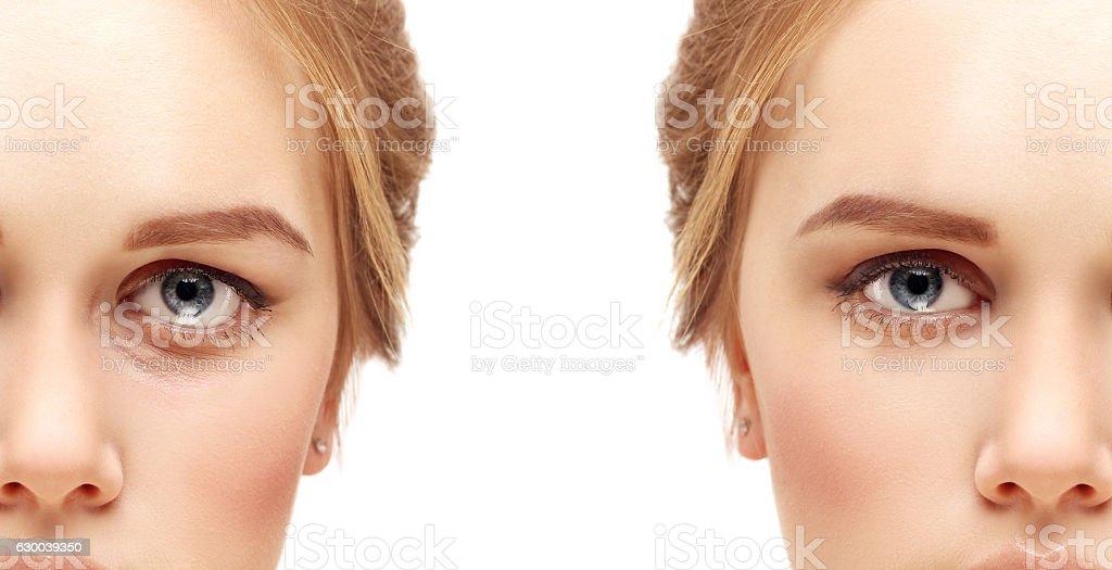 Lower blepharoplasty.Upper blepharoplasty – Foto
