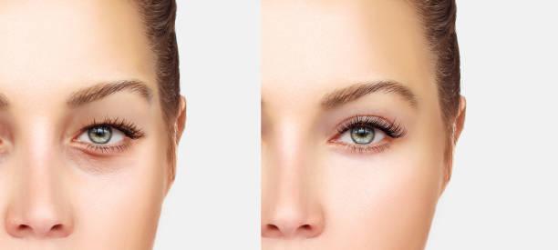 lower blepharoplasty.upper blepharoplasty - eyelid stock photos and pictures
