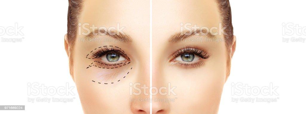 Untere Blepharoplasty.Upper Blepharoplastik. Endoskopische Stirn und Augenbrauen heben. Markieren das Gesicht. Perforationslinien auf Frauen Gesicht, plastische Chirurgie-Konzept. – Foto