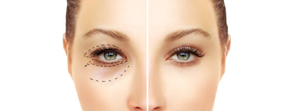 lower blepharoplasty.upper blepharoplasty.endoscopic forehead and brow lift.marking the face.perforation lines on females face, plastic surgery concept. - eyelid stock pictures, royalty-free photos & images