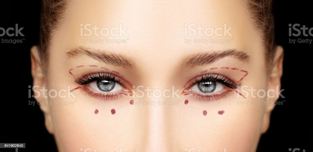 Lower Blepharoplasty.Upper blepharoplasty.Marking the face.Perforation lines on females face, plastic surgery concept. – Foto