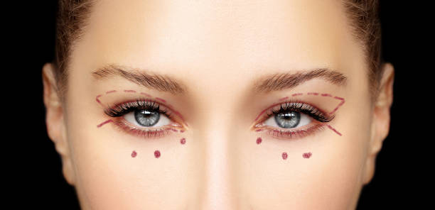 lower blepharoplasty.upper blepharoplasty.marking the face.perforation lines on females face, plastic surgery concept. - eyelid stock photos and pictures