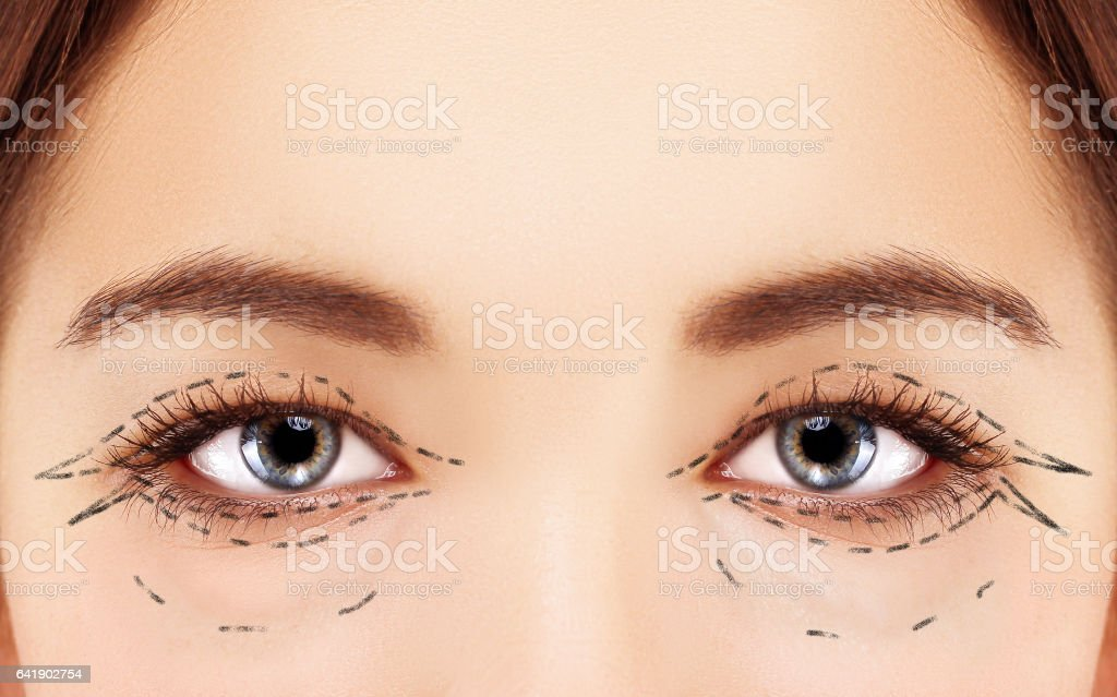 Lower Blepharoplasty.Upper blepharoplasty.Marking the face.Perforation lines on females face, plastic surgery concept. stock photo