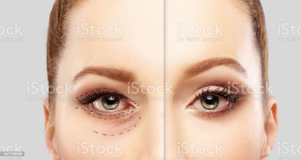 Untere Blepharoplasty.Upper Blepharoplastik. Markieren das Gesicht. Perforationslinien auf Frauen Gesicht, plastische Chirurgie-Konzept. – Foto
