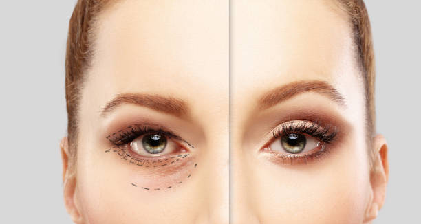 lower blepharoplasty.upper blepharoplasty.marking the face.perforation lines on females face, plastic surgery concept. - eyelid stock pictures, royalty-free photos & images