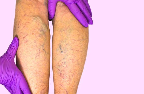 Unteren Extremität vaskuläre Untersuchung, weil verdächtige der venösen Insuffizienz – Foto
