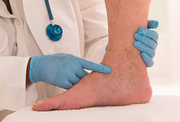 Lower limb vascular examination stock photo