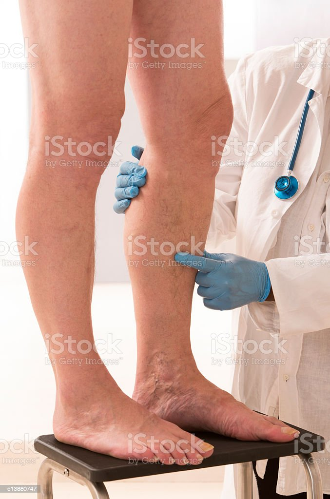 Lower limb vascular examination stock photo