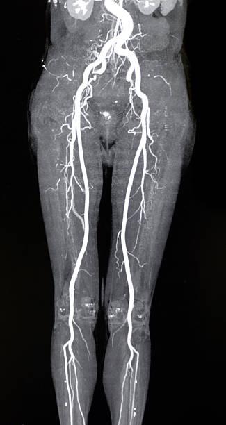 Arteria Femoral - Stock Fotos e Imágenes - iStock