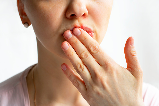 Cara Mengatasi Bibir Bengkak