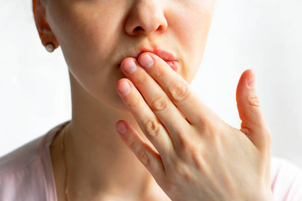 untere teil der frau gesicht mit roten blasen von virus herpes auf ihren lippen, versteckt sie mit ihrer handfläche auf weißem hintergrund, zoster, kalt, medizin, behandlung. horizontal - menschlicher mund stock-fotos und bilder