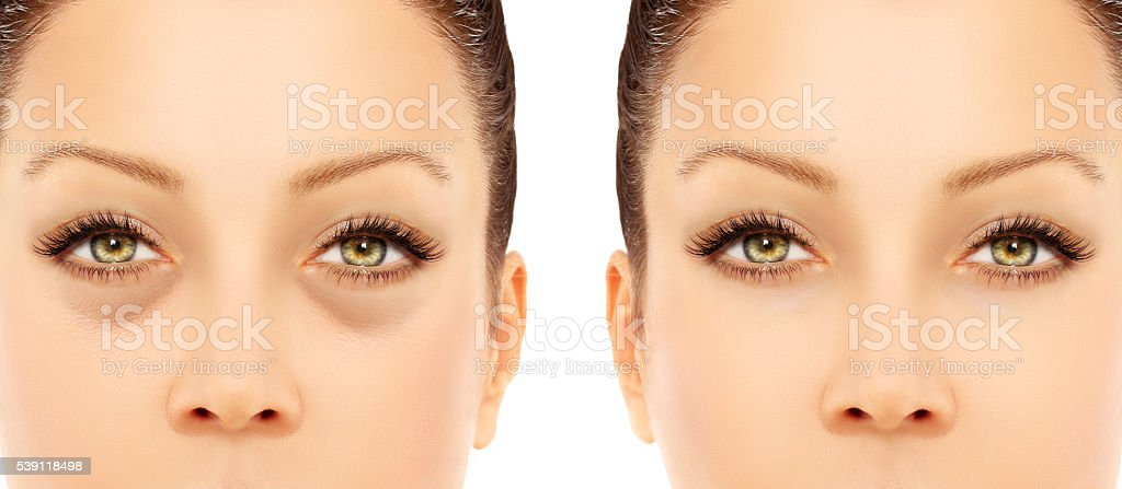Lower-Eyelid Blepharoplasty.Correcting  the aging process stock photo