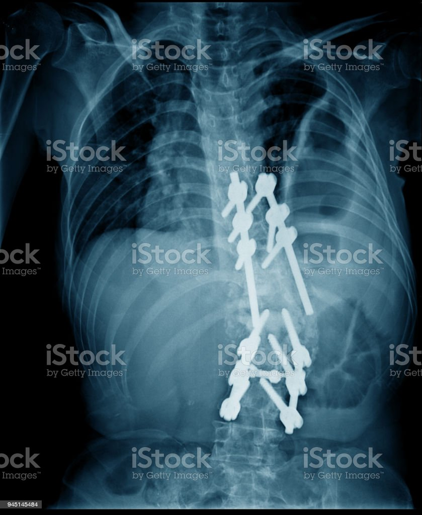 lumbar compression fracture fixed stock photo