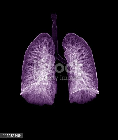 istock Lung 3d rendering image CT Chest 3D with purple color showing Trachea and lung in respiratory system. 1152324464