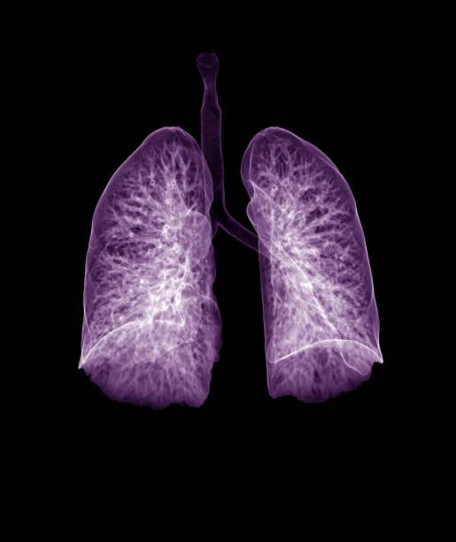 Lung 3d Rendering Bild CT Chest 3D mit lila Farbe zeigt Trachea und Lunge in der Atemwege. – Foto