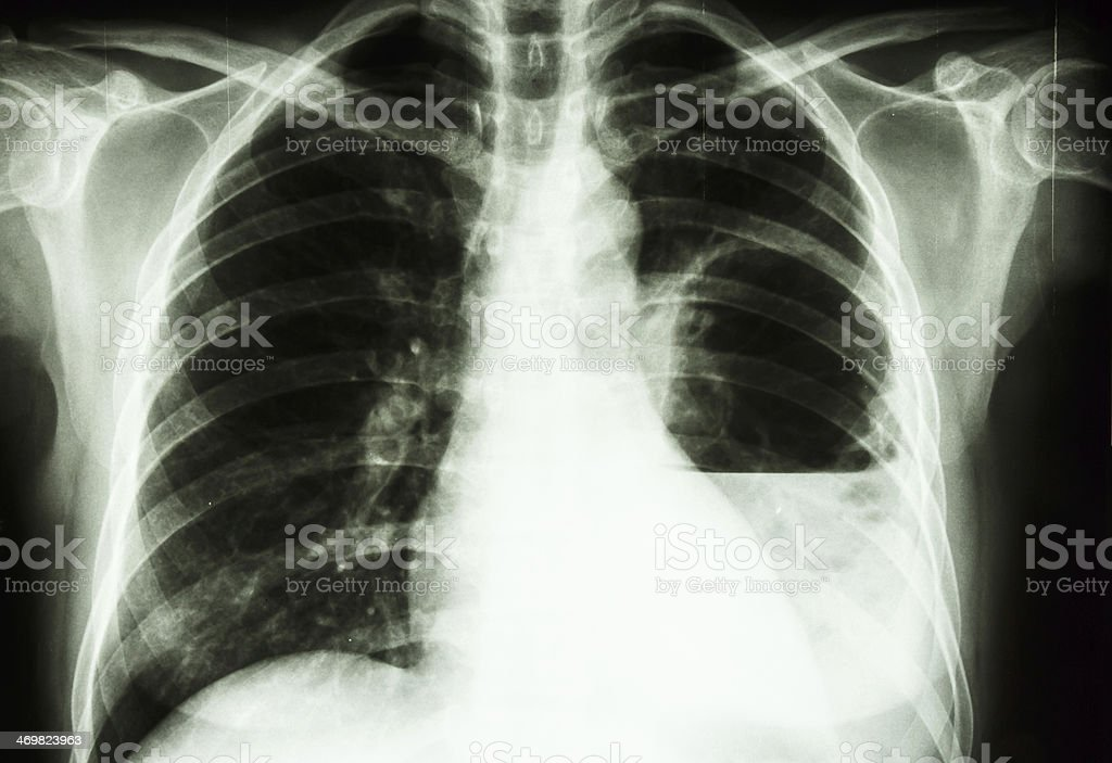 lung abscess stock photo