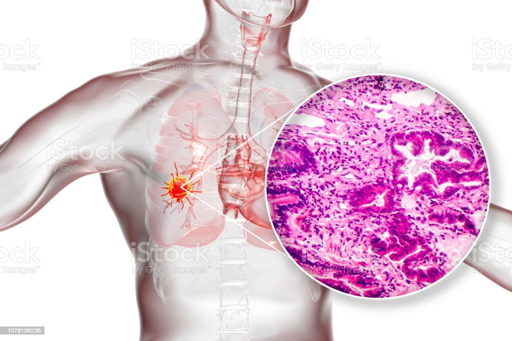 Lung cancer, illustration and photo under microscope stock photo