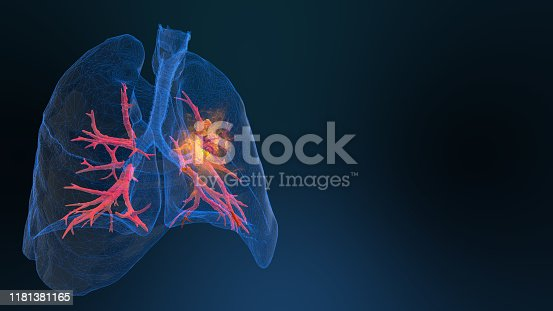 lung cancer Medical concept